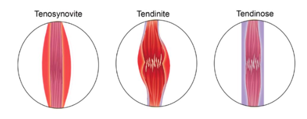 tendinopathie